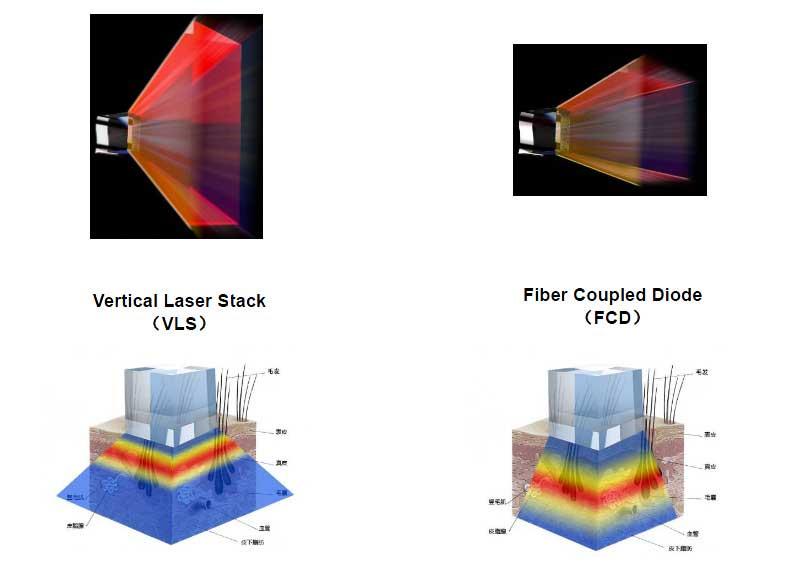 Laser fibra ottica con rilevatore fototipo